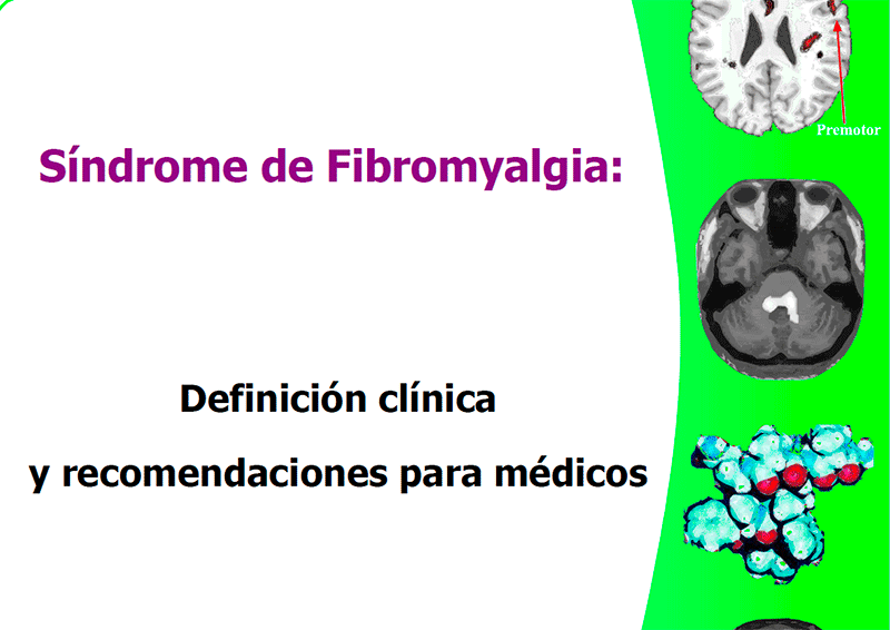 fibromialgia criterios canadienses